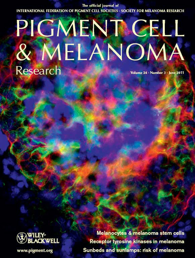 Pigment Cell & Melanoma Research 24:3 (June 2011 issue)