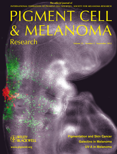 Pigment Cell &amp; Melanoma Research 25:5 (September 2012 issue)