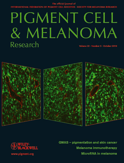 Pigment Cell & Melanoma Research, new issue released 23:5