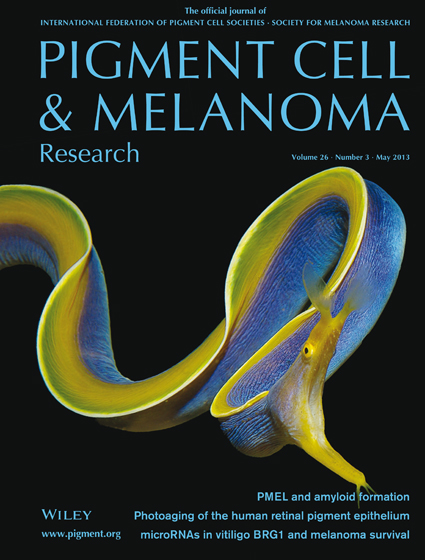 Pigment Cell &amp; Melanoma Research 26:3 (May 2013 issue)