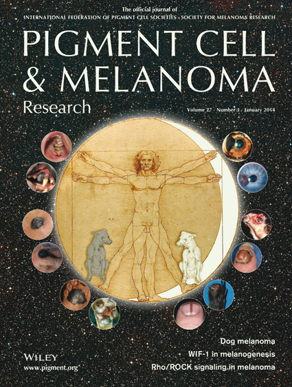Pigment Cell & Melanoma Research 27:1 (January 2014 issue)
